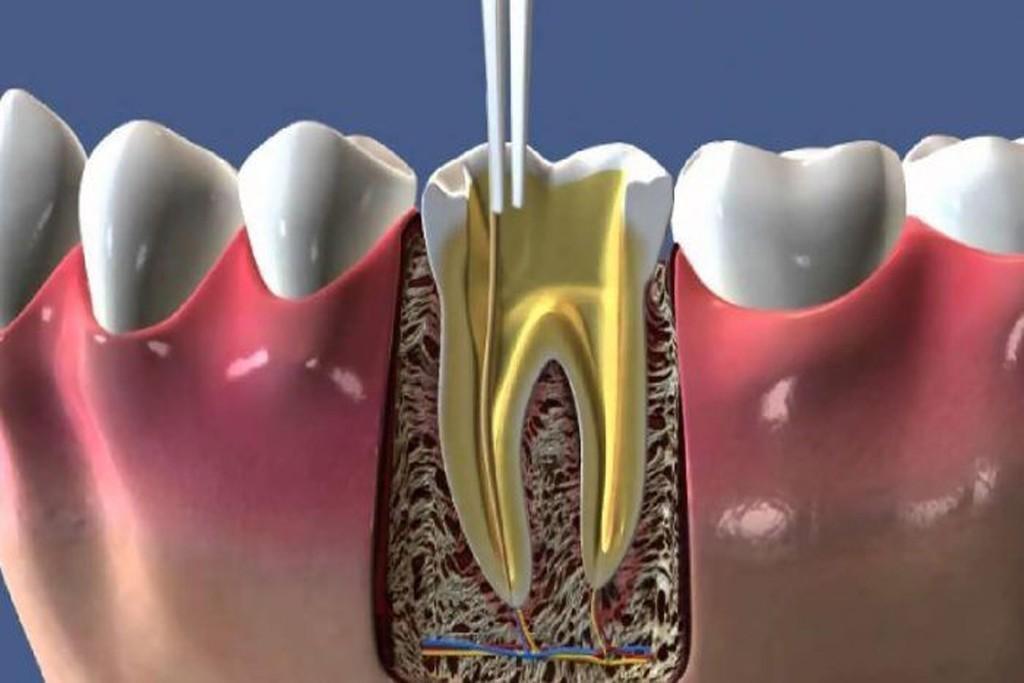 endodonti-kanal-tedavisi